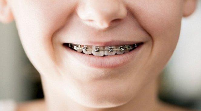 Брекеты могут быть опасны для зубов и десен детей