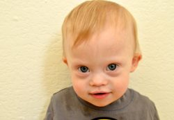 Синдром ФАС у детей: почему бывает и правда ли, что он неизлечим?