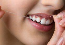 Зубной камень — причины, лечения