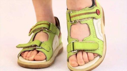 Как правильно подобрать ортопедическую обувь для ребенка
