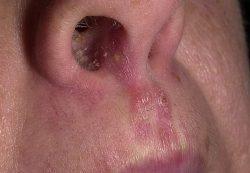 Болезни носа у детей
