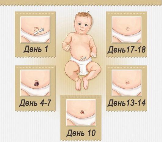 Пупок у новорожденного — как обрабатывать пупочную ранку в первые недели с момента рождения малыша