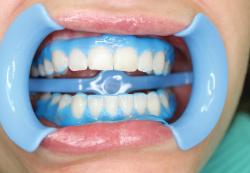 Отбеливание зубов – профессиональные процедуры и домашние рецепты