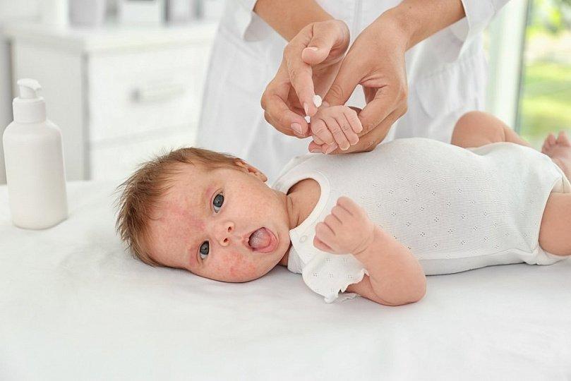 Снизить риски аллергии у детей: практические советы родителям
