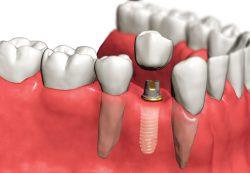 Быстрая и качественная имплантация зубов в стоматологическом центре Z3