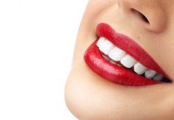 Днепропетровский стоматологический центр Angelden делает улыбки пациентов белоснежными