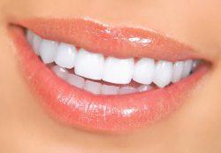 Три популярные косметические стоматологические процедуры