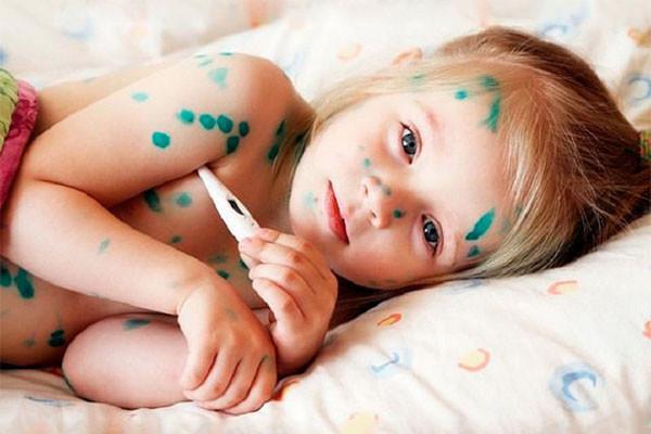 Синяки под глазами у ребенка, что влияет на это