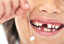 Вредно ли вырывать ребенку молочные зубы?