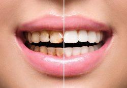 Разновидности восстановления зубов