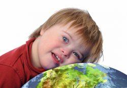Синдром Дауна: какие нынешние направления научных исследований?