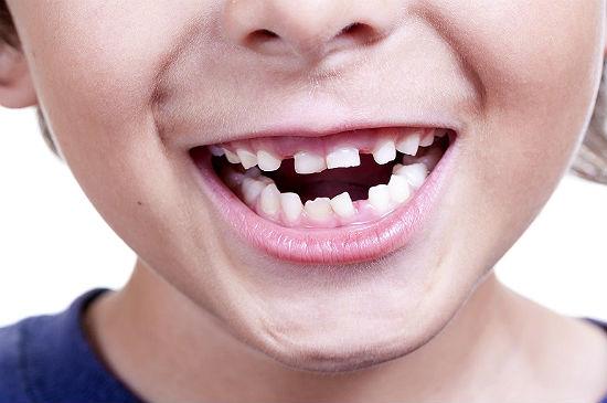 Почему так важна гигиена полости рта у детей?