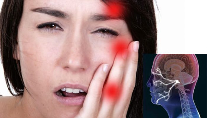 Когда лицевая боль не дает спать по ночам — невралгия тройничного нерва