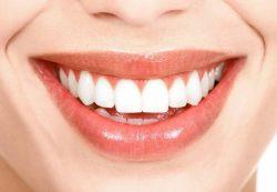 """Как добиться естественной улыбки с компанией """"ДОКТОР СЛОН"""""""