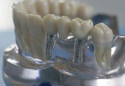 Протезирование зубов с применением качественных современных инструментов