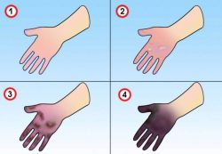 Симптомы обморожения рук у детей