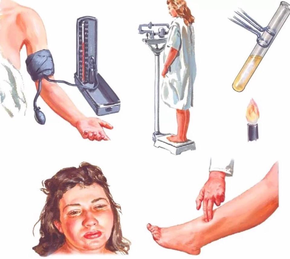 Преэклампсия при беременности