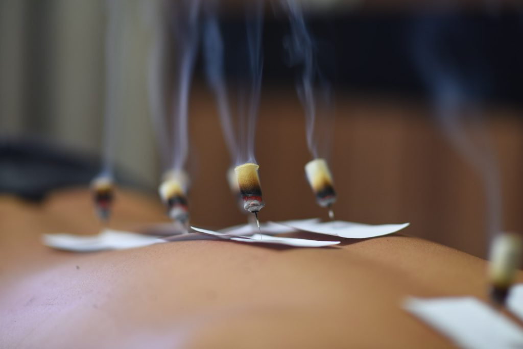 Традиционная китайская медицина: иглоукалывание, травы, прижигание, банки и массаж