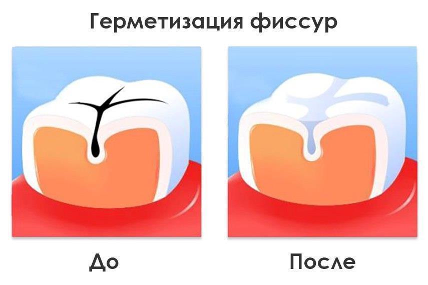 Герметизация фиссур — залог здоровья молочных зубов