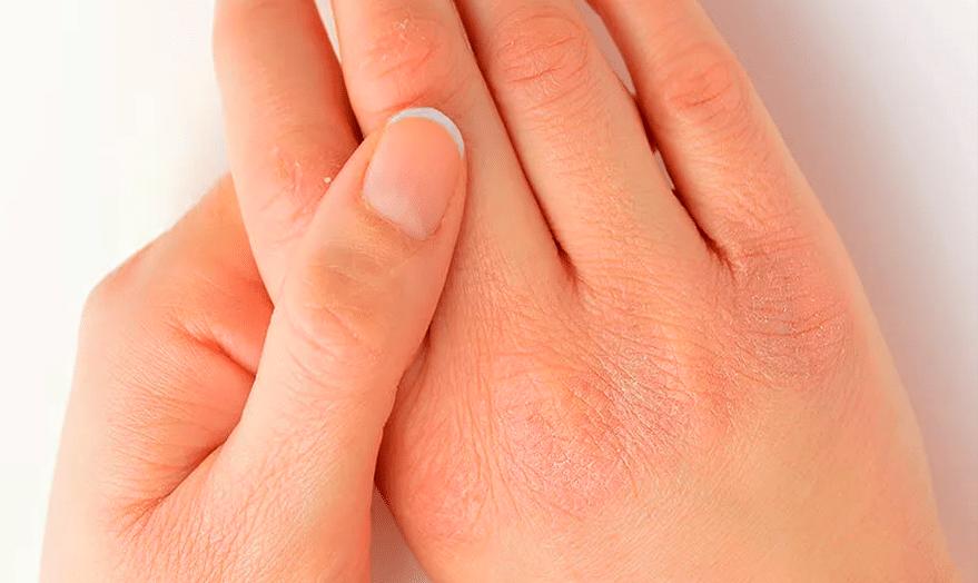 Как убрать раздражение на коже рук
