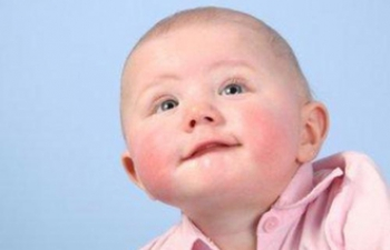 Фолликулярный и эрозивный бульбит у детей: особенности лечения