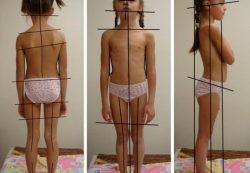 Сколиоз у детей: чем опасен, причины появления, профилактика